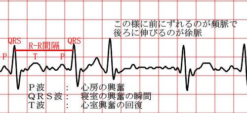 20190504_N85_Tachycardia_2.jpg
