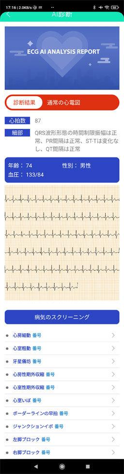 20210316_E80-App-ECG.jpg