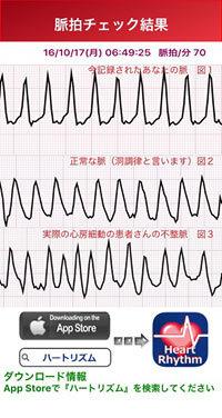 plus_wave1.jpg